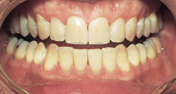 AgingBefore Whitening