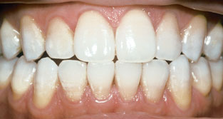 TetracyclineAfterWhitening