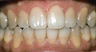 TetracyclineBefore Whitening